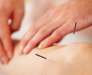 Acupuncture for dummies